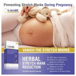 V-mark Anti Stretch Mark Cream